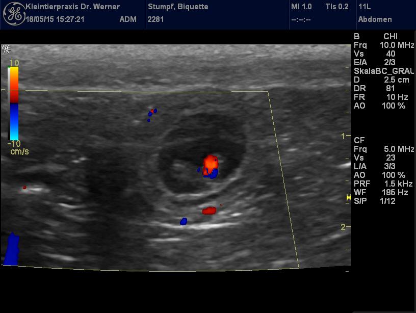 Biq E Ultraschall 3